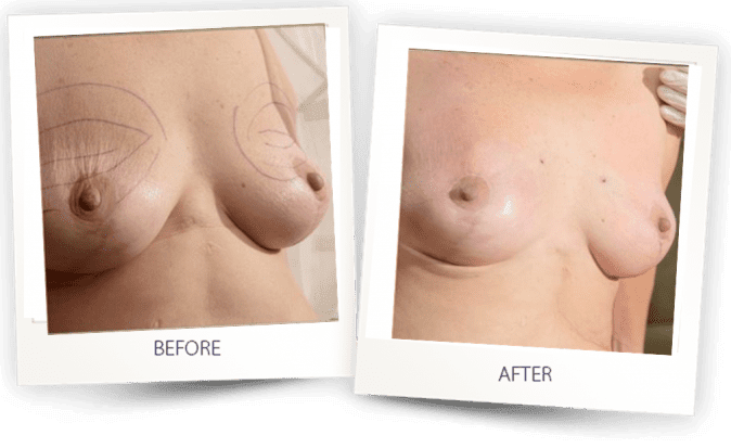 breast reconstruction using fat transfer before and after