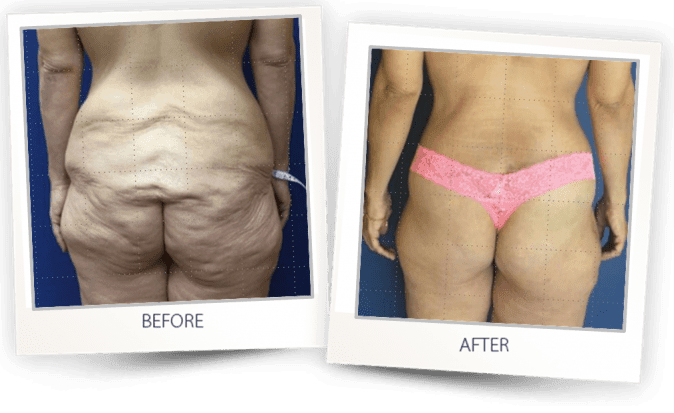skin tightening after weight loss