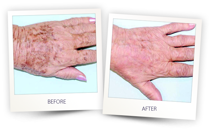 Age spots treated with laser and IPL before and after