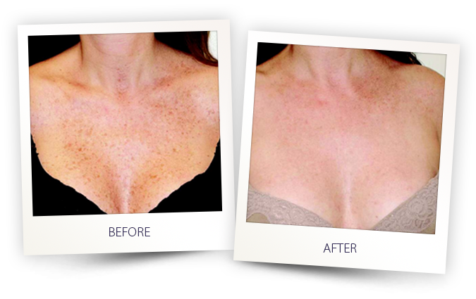 sun spots and freckles pigmented lesion removal before and after