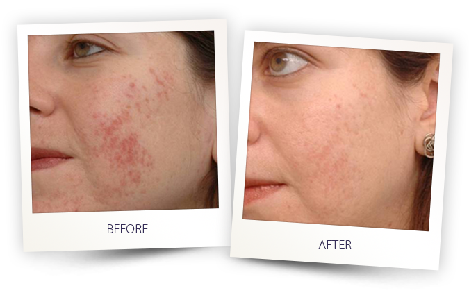 moderate acne treatment before and after