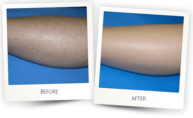 Hair removal alma lasers before after solutioingenieria Choice Image