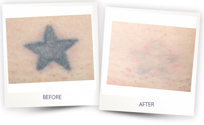 Tattoo removal with PICOCLEAR
