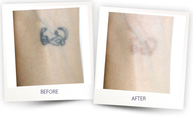 PICOCLEAR tattoo removal