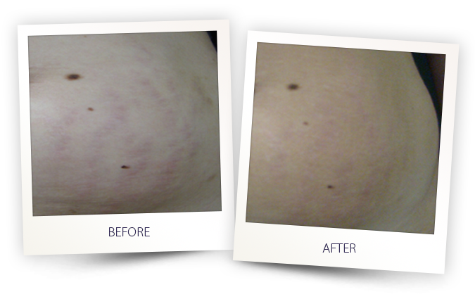 Striae or stretch marks removal treatment