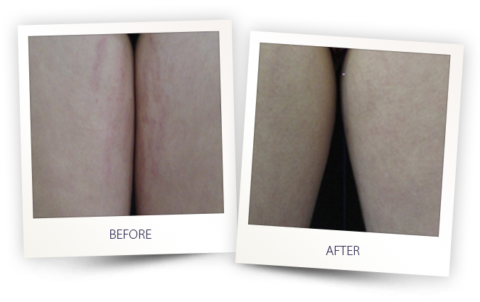 Stretch marks laser treatment by Alma