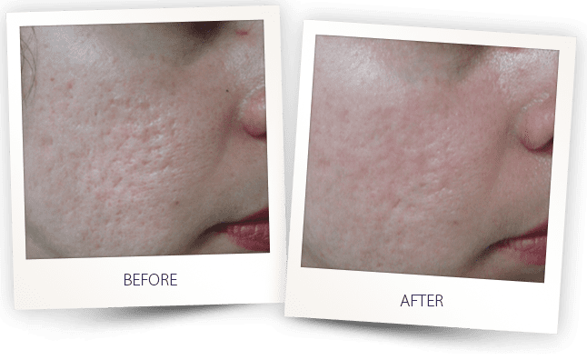 Acne scars revision by Alma