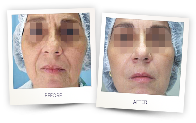 face rejuvenation before and after