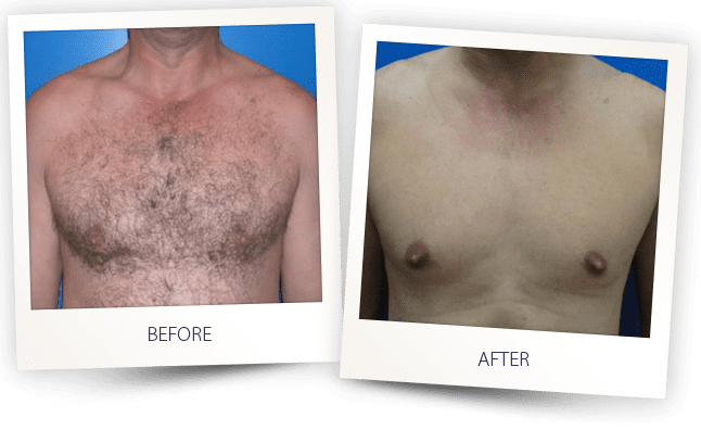 hair removal chest before and after