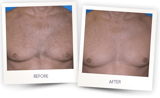 chest hair removal before and after