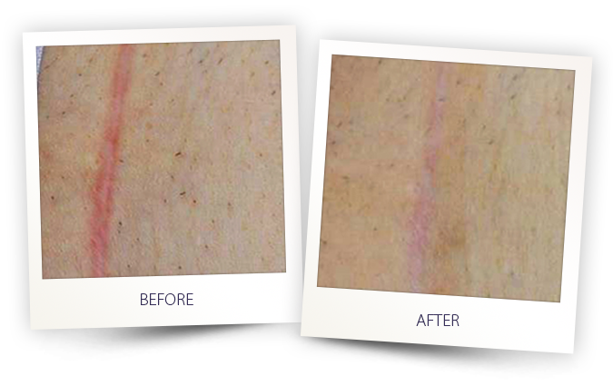 laser IPL treatment for moles and pigmented lesions