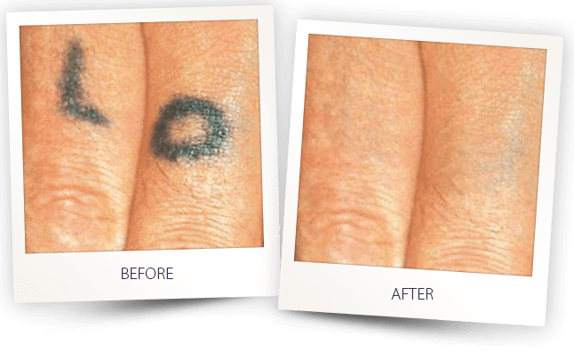 before and after laser tattoo removal treatment
