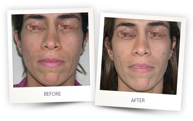 Acne and Rosacea laser treatment by Alma