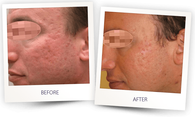 Acne scars removal laser treatment