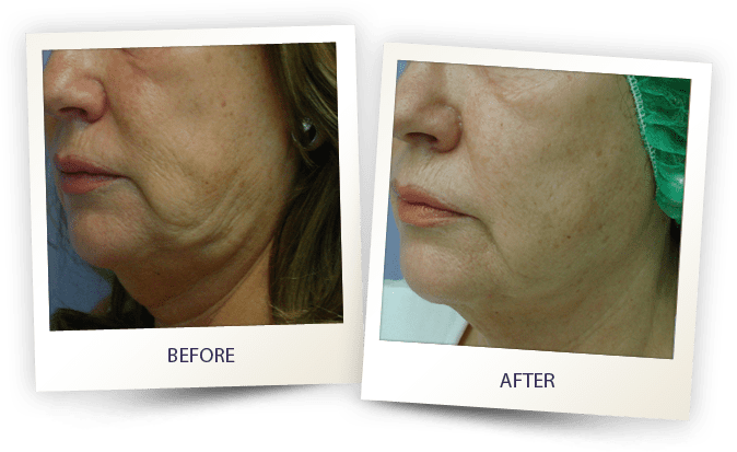 face contouring by Alma - jawline treatment