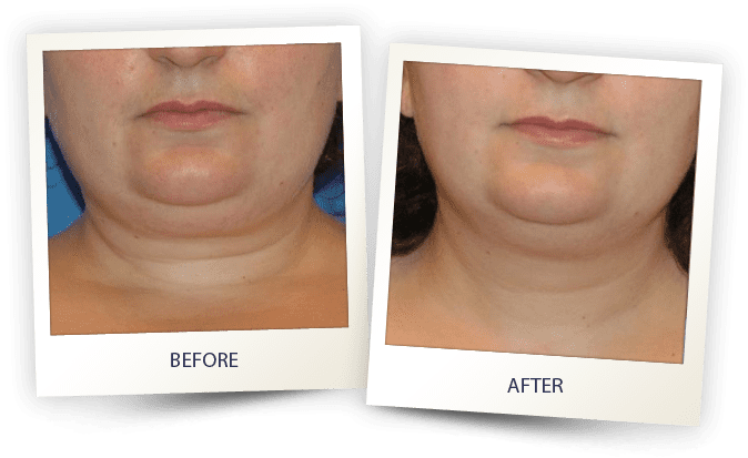 face contouring by Alma - jawline and neckline treatment