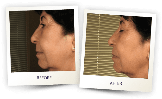 face contouring by Alma - double chin treatment
