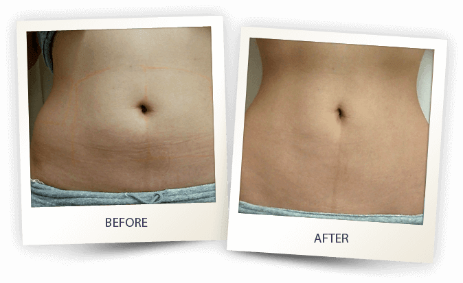 Cellulite treatment results