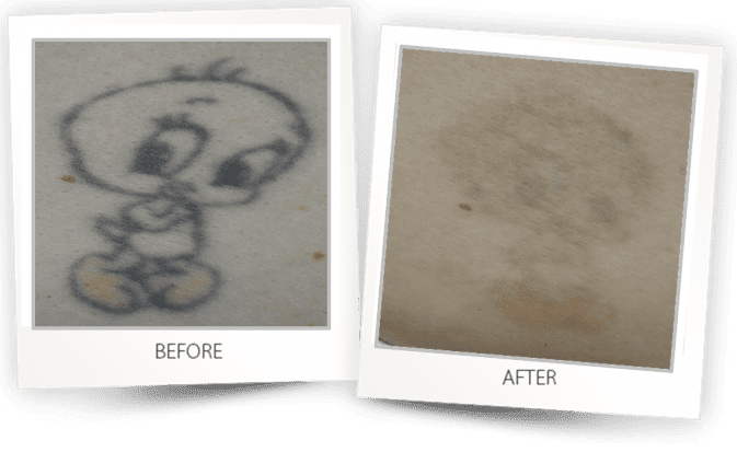 Tattoo Removal how to remove