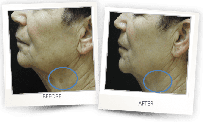 Pigmented lesion skin hyperpigmentation treatment