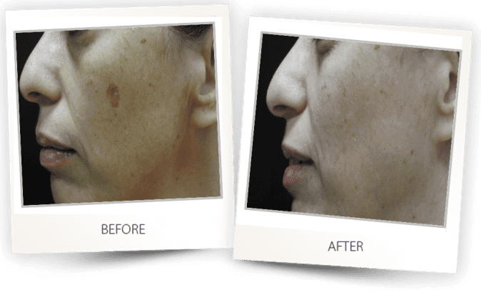 remove skin hyperpigmentation and pigmented lesions with IPL treatment
