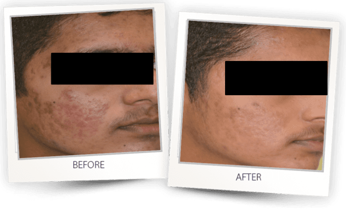 Acne spot removal for all skin types
