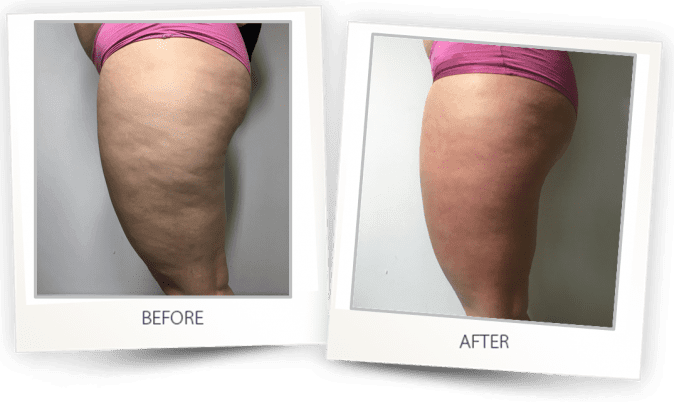 Before and after Cellulite treatment photos