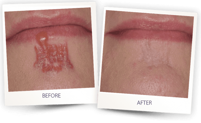 Scars removal | CO2