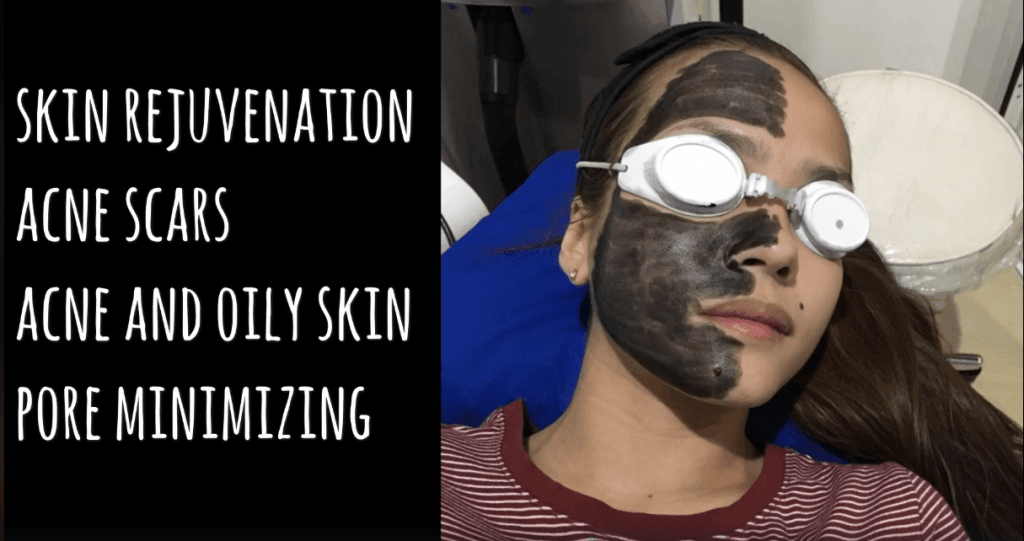 carbon laser peel by Alma