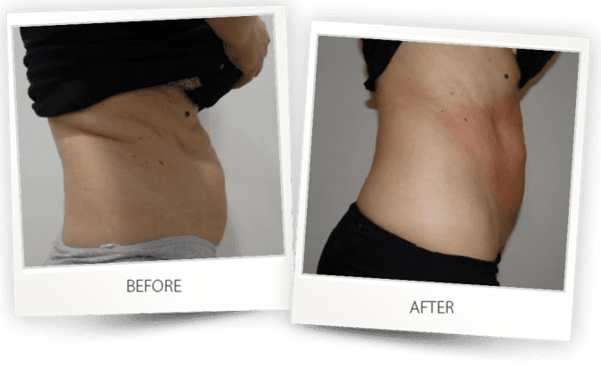 Body contouring with Accent Prime