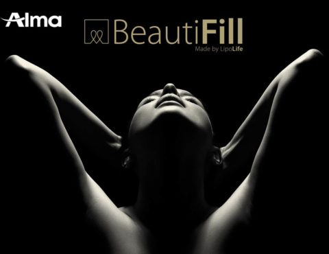 Alma Launches BeautiFill