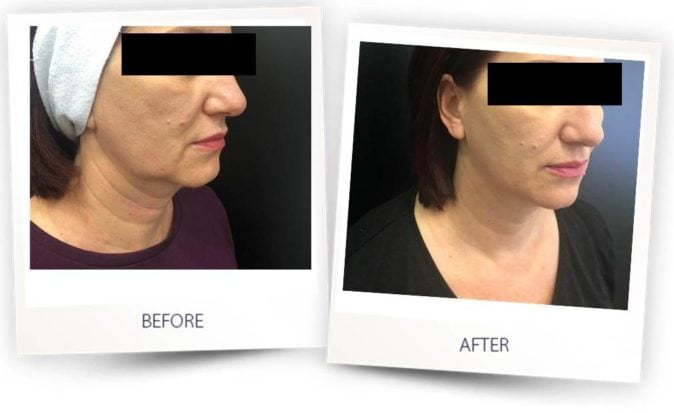 Before and After Face Contouring treatment