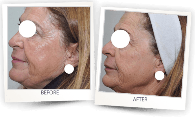 before and after - skin resurfacing with Pixel CO2 laser