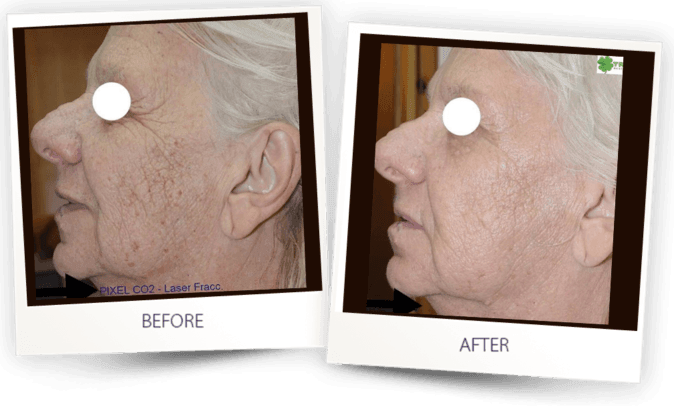 before and after - skin resurfacing with Pixel CO2 fractional laser