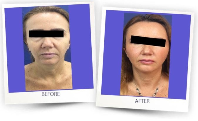 Fat grafting for face