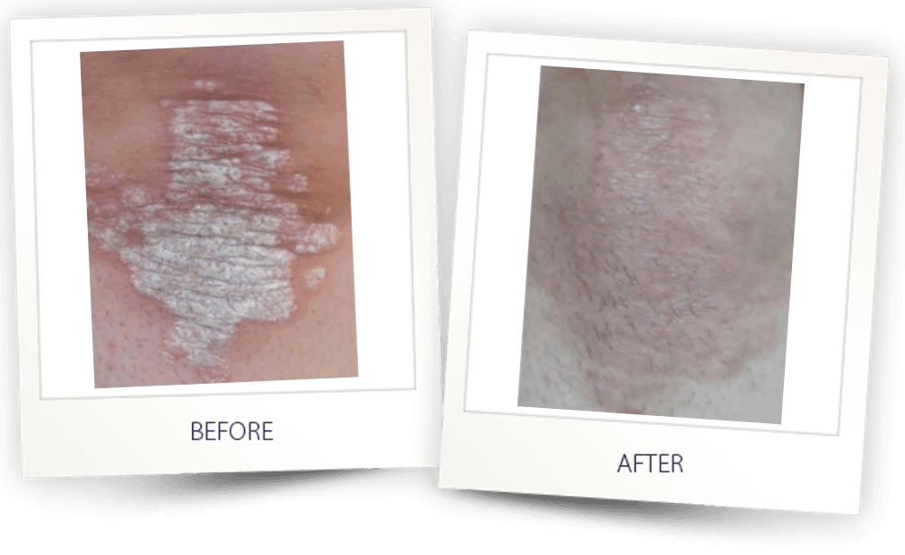 treatment of psoriasis with 308 excimer