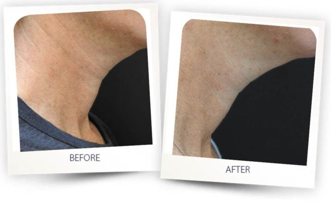 Skin Rejuvenation after 4 treatments with PICO Clear - PicoLift
