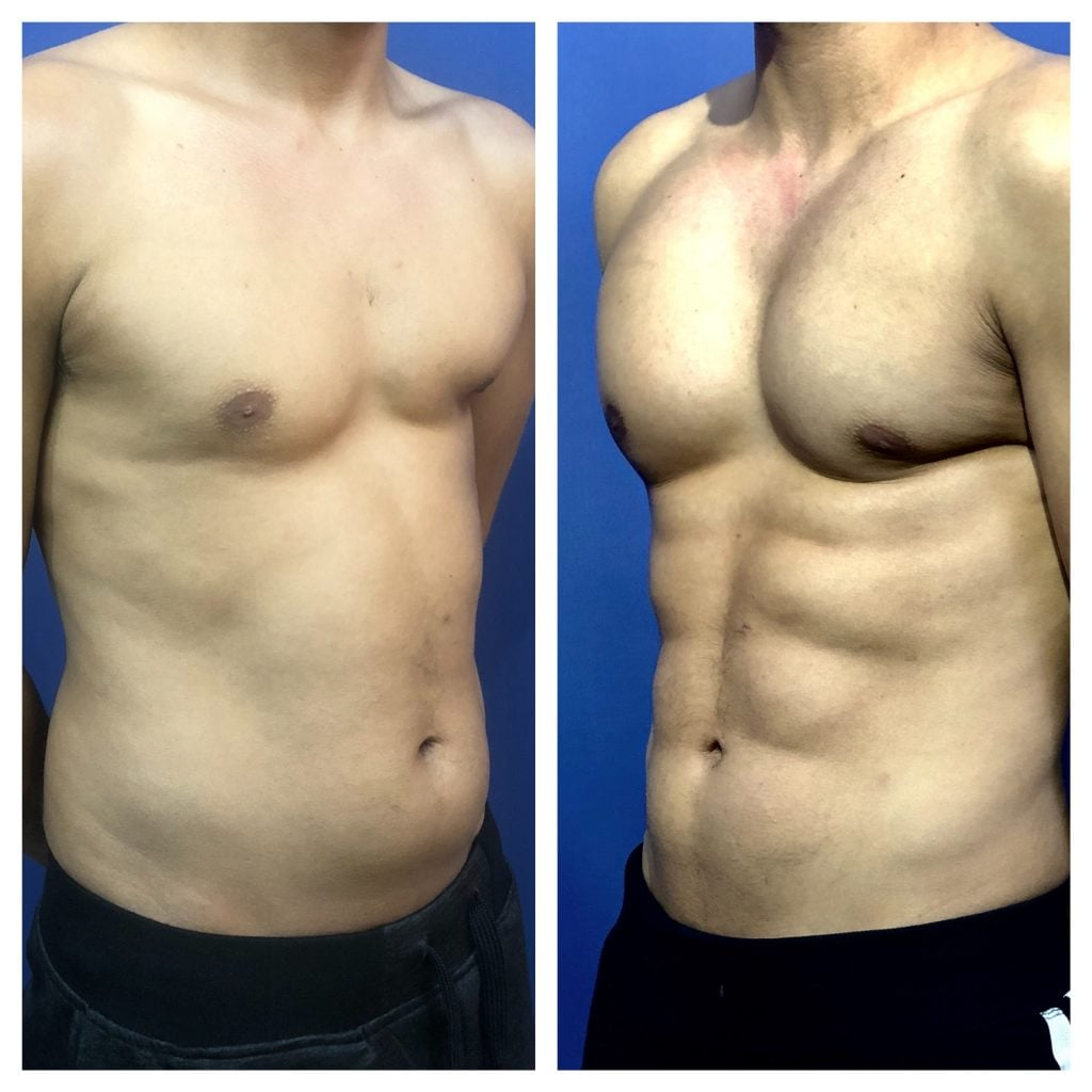 6 pack abs before and after photos