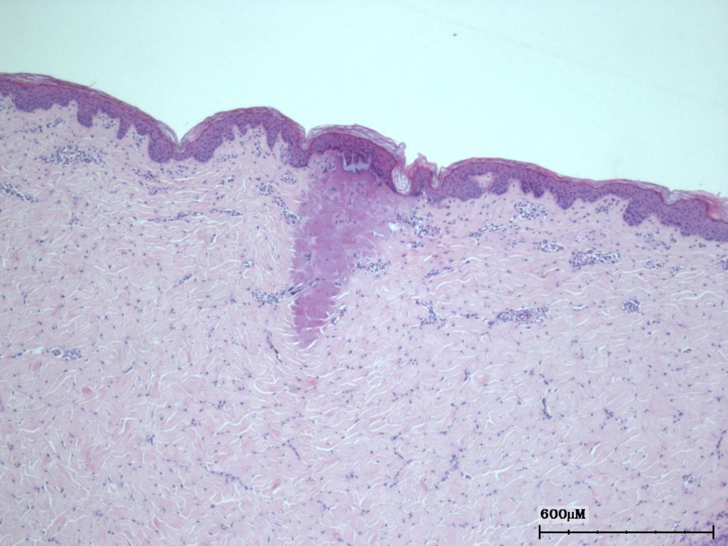 non-ablative fractional laser histology