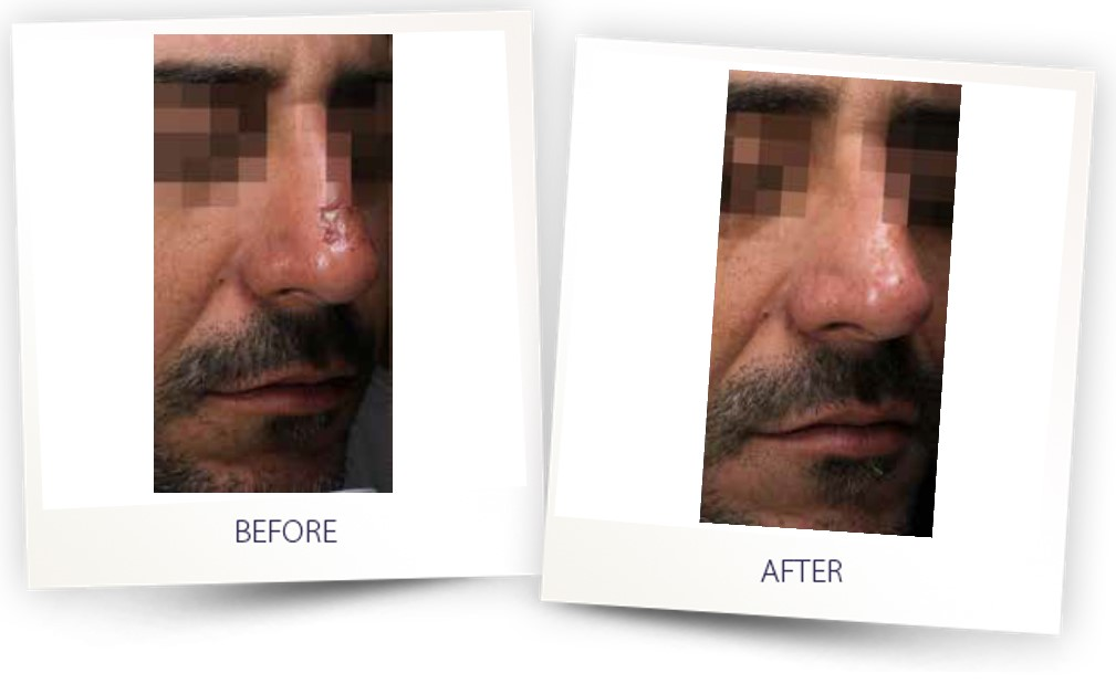 Hybrid-Oscar-Scar-treatment-before-and-after-photo